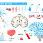 Understanding Sexual Dysfunction and Parkinson's Disease