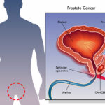 Prostate and ED Problems: Does Prostate Cancer Cause Impotence?